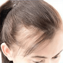 Tratament impotriva caderi parului la femei. Clinica Derma Expert by Elōs foloseste produsele profesionale Filorga