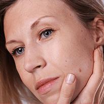 Excizie alunite rapid si usor cu ajutorul tehnologiei laser in clinica Derma Expert by Elōs