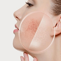 Tratament pentru leziuni vasculare faciale realizat cu tehnologia laser in clinica Derma Expert by Elōs