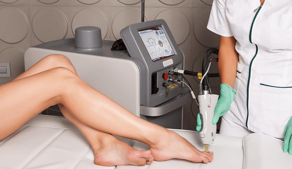 Tratament onicomicoza cu ajutorul tehnologiei laser. Tratament modern pentru indepartarea ciupercii piciorului.