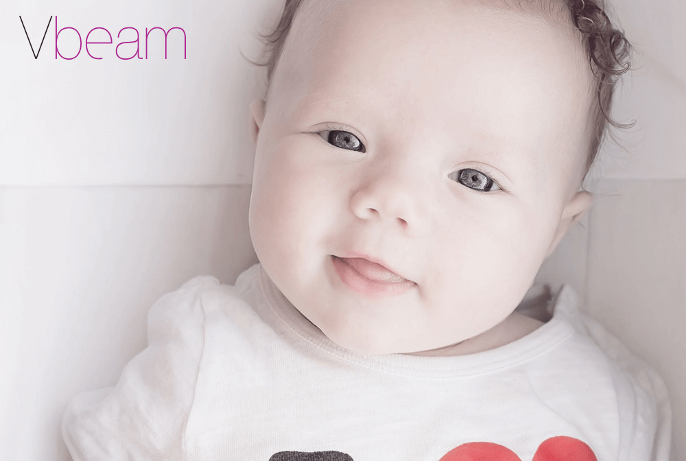 Tratamentul dermatologic de la Vbeam este recomandat pentru tratarea petei de vin aparuta la bebelusi.