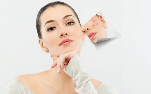 Tratament impotriva acneii vulgare. Derma Expert by Elōs iti ofera solutii personalizate pentru tratarea acneei