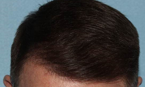 After-Implant par