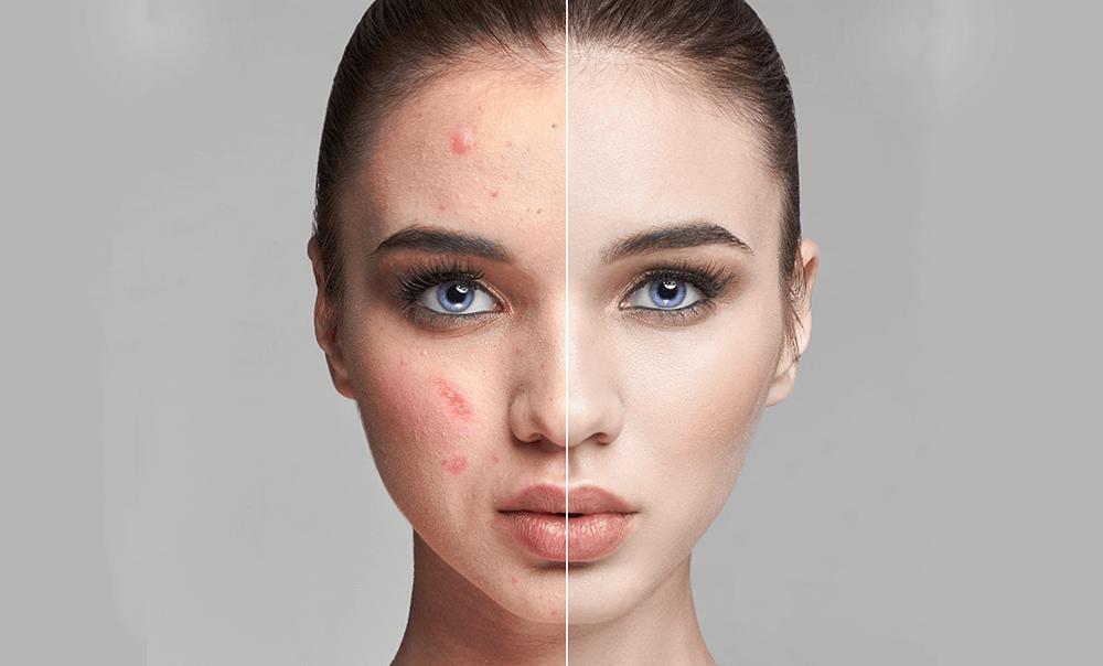 tratamente laser pentru acnee