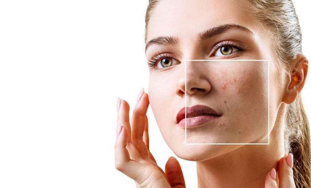 consultatie dermatologica acnee